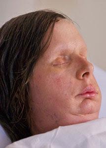 Charla Nash. Amplíe si quiere ver su cara antes de la operación. | BWH