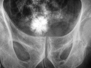 Large Stellate Urinary Bladder Stone