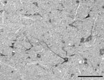 Thumbnail of In situ detection by using Nomarski differential interference contrast microscopy of Schmallenberg virus mRNA in neurons in the medulla of a neonatal sheep for which Schmallenberg virus infection was confirmed by real-time quantitative reverse transcription PCR. Scale bar = 100 μm.