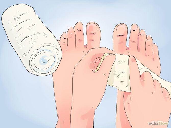 Heal Cracked Skin Step 5 Version 2.jpg