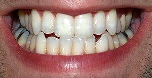 Teeth of a model.