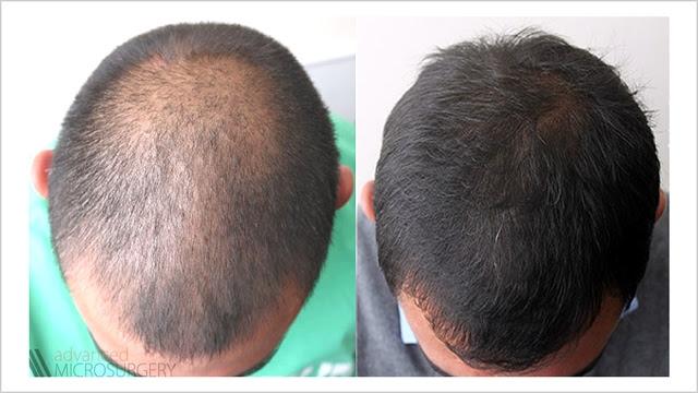 ricrescita capelli cellule staminali - Cellule staminali per far crescere i capelli nuova cura Fidelity News