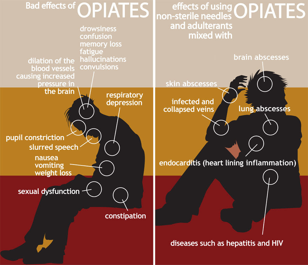 Image result for images opiates