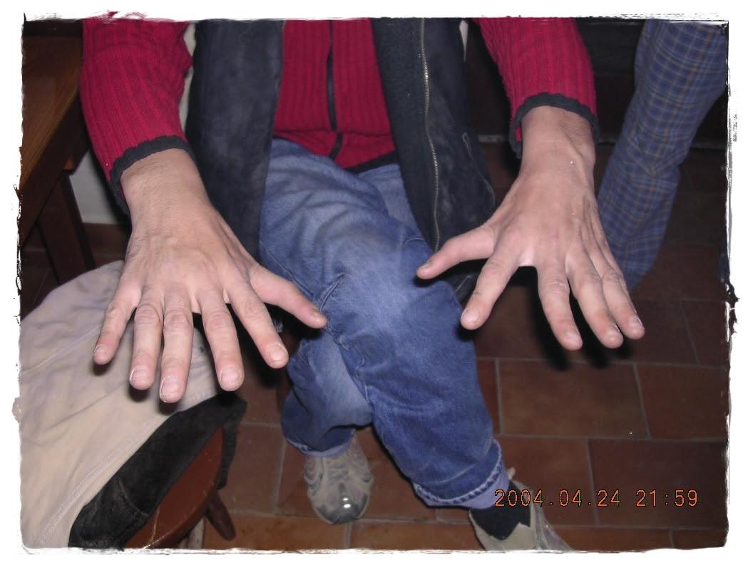 Mindkét kezén és lábán hat-hat ujj