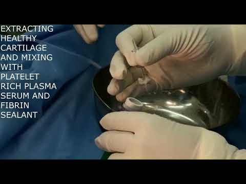 Cartilage Transplant Surgery