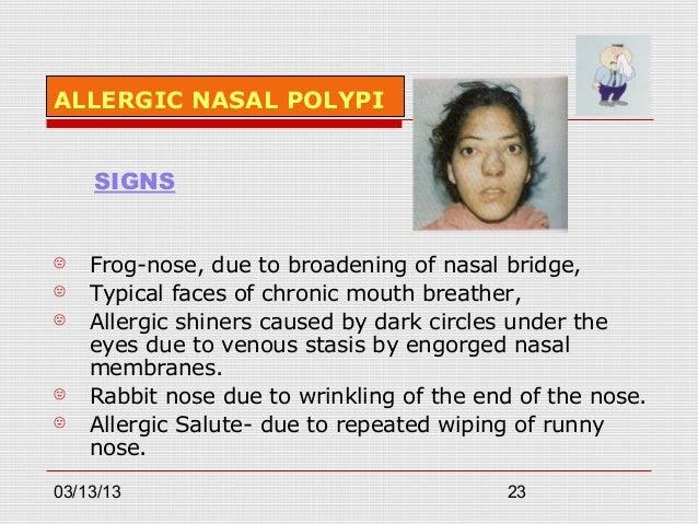 Allergic polypi