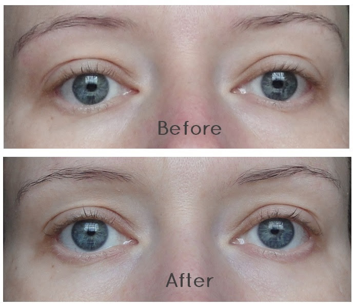Shiseido Shiseido Eye Mask Before And After
