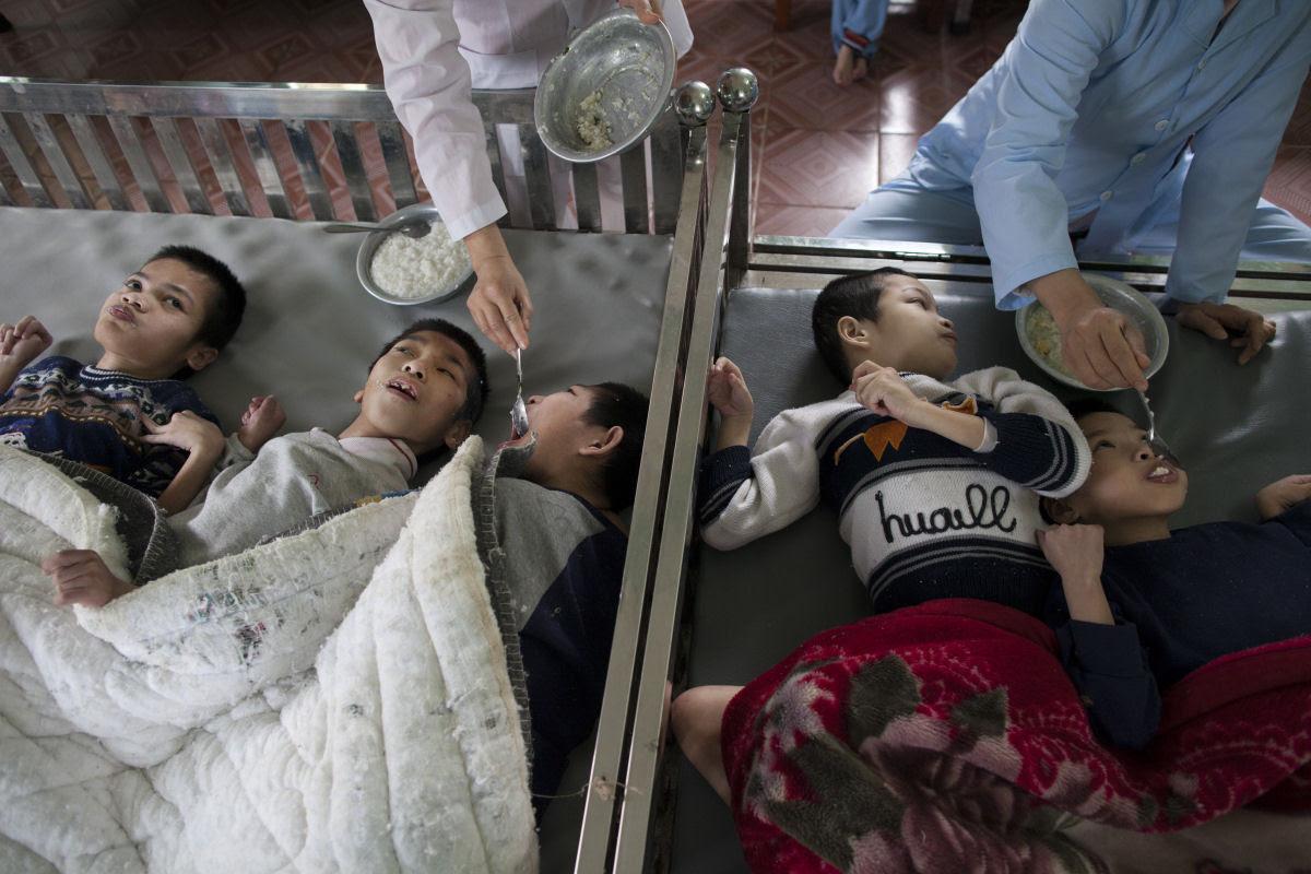 Estas 12 fotos mostram o legado devastador dos Estados Unidos no Vietnã 07