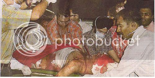 Hindustan's victim of Jehadhi terrorist pigs