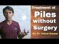 सर्जरी के बिना बवासीर  का उपचार