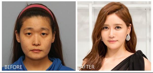 As plásticas mais incríveis de asiáticos
