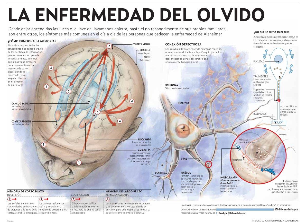 http://infografiasencastellano.files.wordpress.com/2011/10/alzheimer-laenfermedaddelolvido.jpg