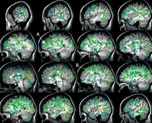 orgasmo femenino y crebro