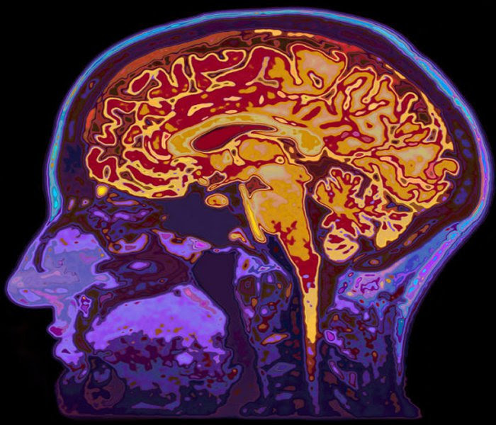 MRI image of brain (stock image). Postdoctoral researcher Patrick Watson studied the relationship between individual brain differences and cognitive abilities. Credit: © highwaystarz / Fotolia