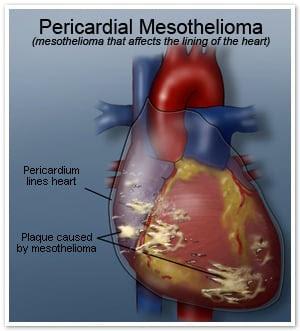 mesothelioma cancer therapies treatments prognosis survival  www.escalofriar.comyr.com
