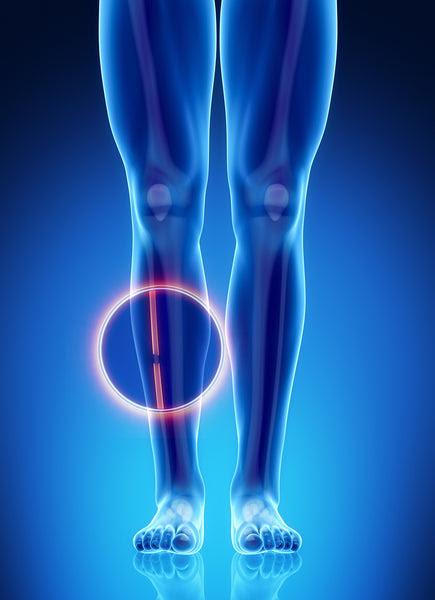 Fractures Of The Fibula Injuries Kneerover
