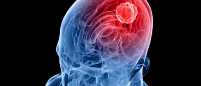 Previna-se: casos de meningite aumentam com dias mais frios