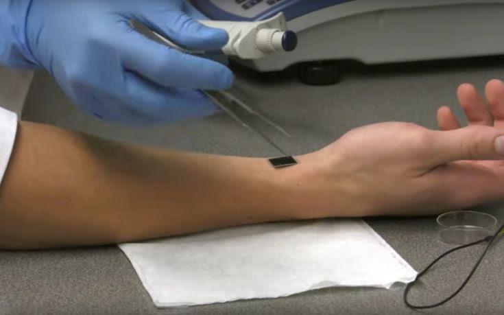 Θεραπεία τραυμάτων απλώς με ένα άγγιγμα