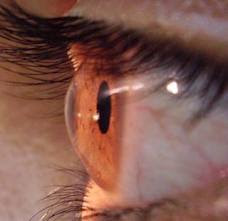 celulas madre de cordon humbilical recuperan tejido retiniano