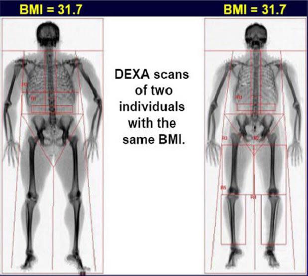 body fat percentage new zealand
