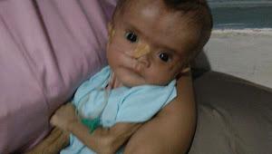 Kian Maharani Balita Usia 5 Bulan Menderita Penyakit Hidrosefalus Butuh Pengobatan Dan Perawatan