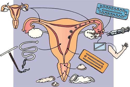 http://stcm.nl/geentaboes/img/qa/anticonceptie.jpg
