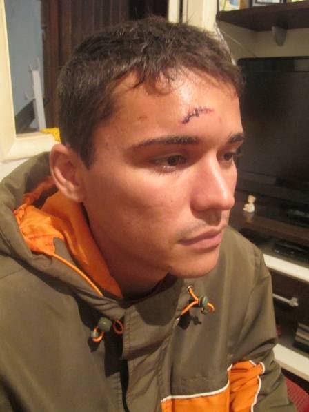 Fabricio, rapaz agredido por Marcelo Faria