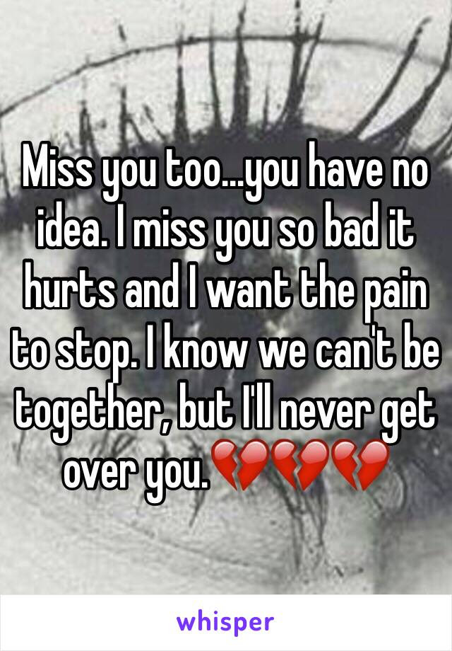 Miss You Tooyou Have No Idea I Miss You So Bad It Hurts And I