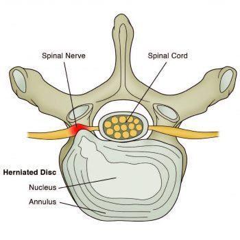 Herniated Lumbar Disc Diagram - El Paso Chiropractor