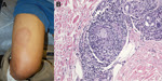 Thumbnail of Physical examination and histopathologic manifestations of leprosy in a 44-year-old man in California, USA (active member of the US military). A) Large, annular, cutaneous plaque on the thigh. B) Skin biopsy specimen showing perineural lymphohistiocytic inflammation and non-necrotizing granulomas (hematoxylin and eosin stained, original magnification ×40).