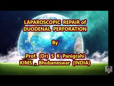 LAPAROSCOPIC REPAIR of DUODENAL PERFORATION SKP Surgical procedure Movies