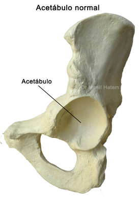 Lábrum do quadril, lábio acetabular, lesões do lábrum