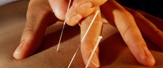 acupuncture soin dépression