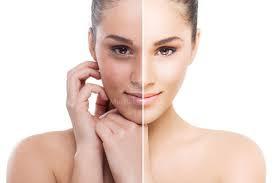 como eliminar manchas oscuras en la cara