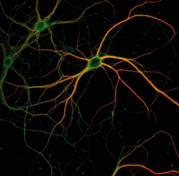 http://www.sciencecodex.com/files/neuron.jpg