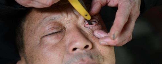 بالصور تنظيف مقلة العين الحلاق