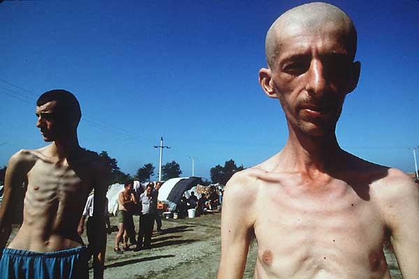 http://www.phawker.com/wp-content/uploads/2011/04/bosnian-genocide-living-skeletons_1.jpg
