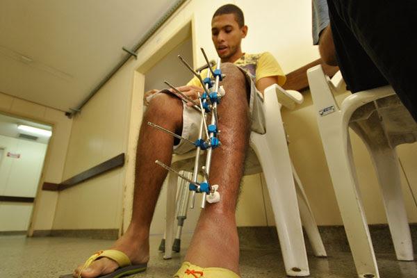 Ítalo Martins, 22, sofreu acidente no dia 1º de julho, quando ia ao trabalho. Teve fratura exposta