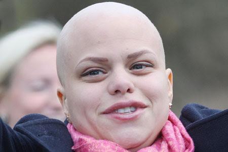 10 Kanker Paling Mematikan