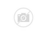Pictures of Frontal Lobe Injury