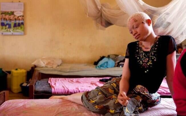 Alngel Salvatore, 17, não resistiu a um câncer de pele contraído pela falta de acesso a proteção solar