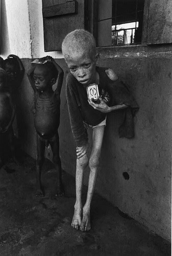 A starving albino boy, harassed and discriminated against for the color of his skin, clutches an empty corned-beef tin at an orphanage, Biafra 1969, by Don McCullin