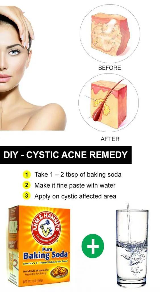 cystics-acne