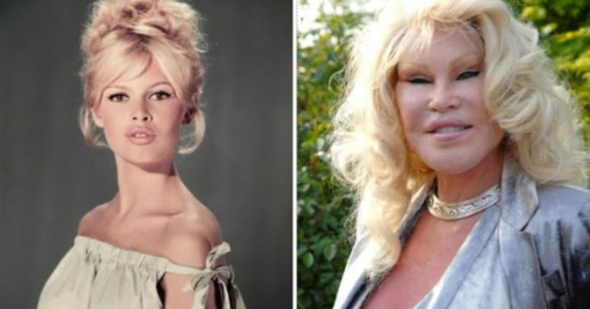Celebrity plastic surgery fails before and after