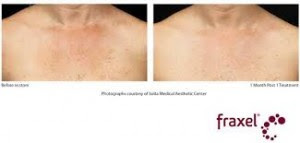 Décolletage: Skin Care Treatments for Neck and chest ...