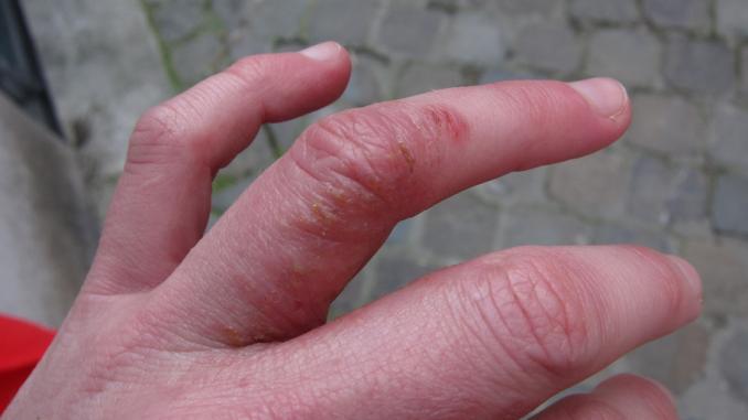 eczema: Pompholyx Eczema Cure