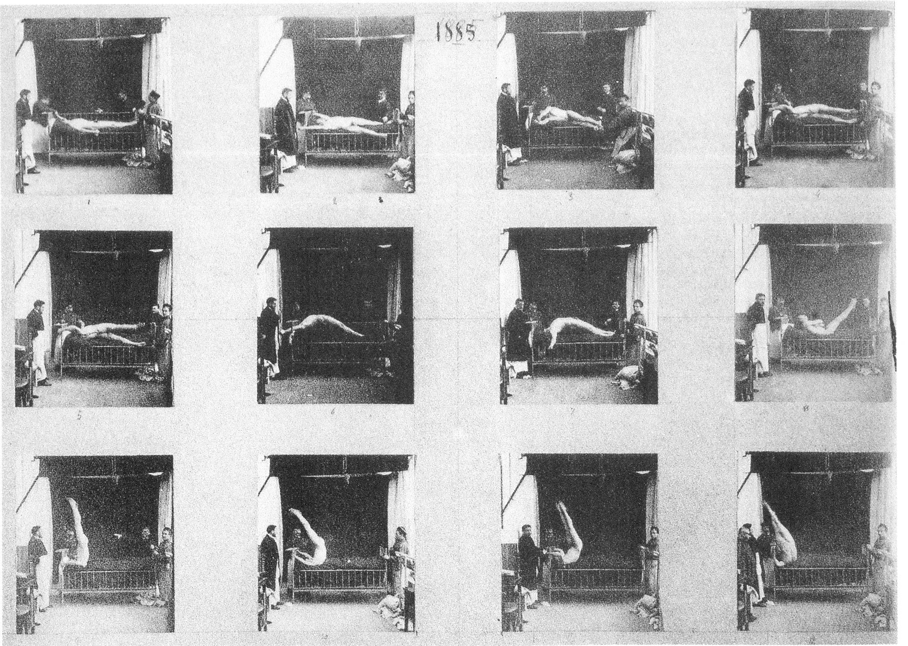 Freud en la secundaria: Charcot. Histeria