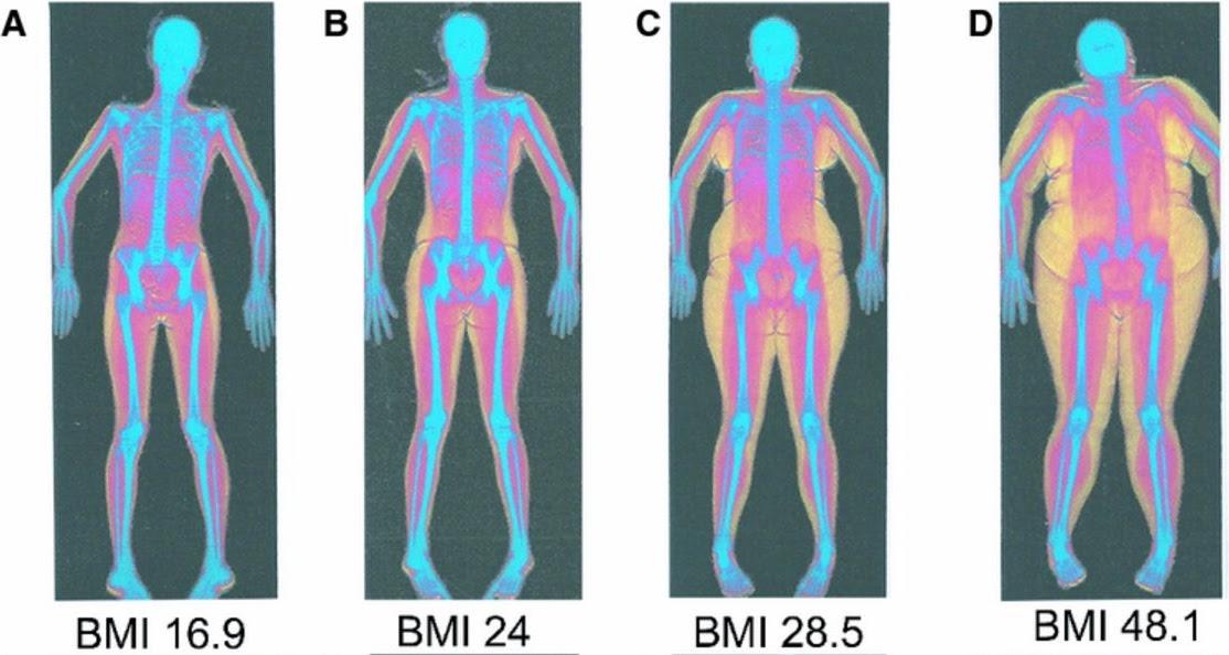 Radiografies de diferents persones amb diferents graus d'obesitat a on es veu que l'esquelet és igual, però l'acumulació de greix no