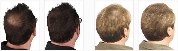 Streuhaare Haarpulver Zur Haarverdichtung Bei Feinen Dünnen Und