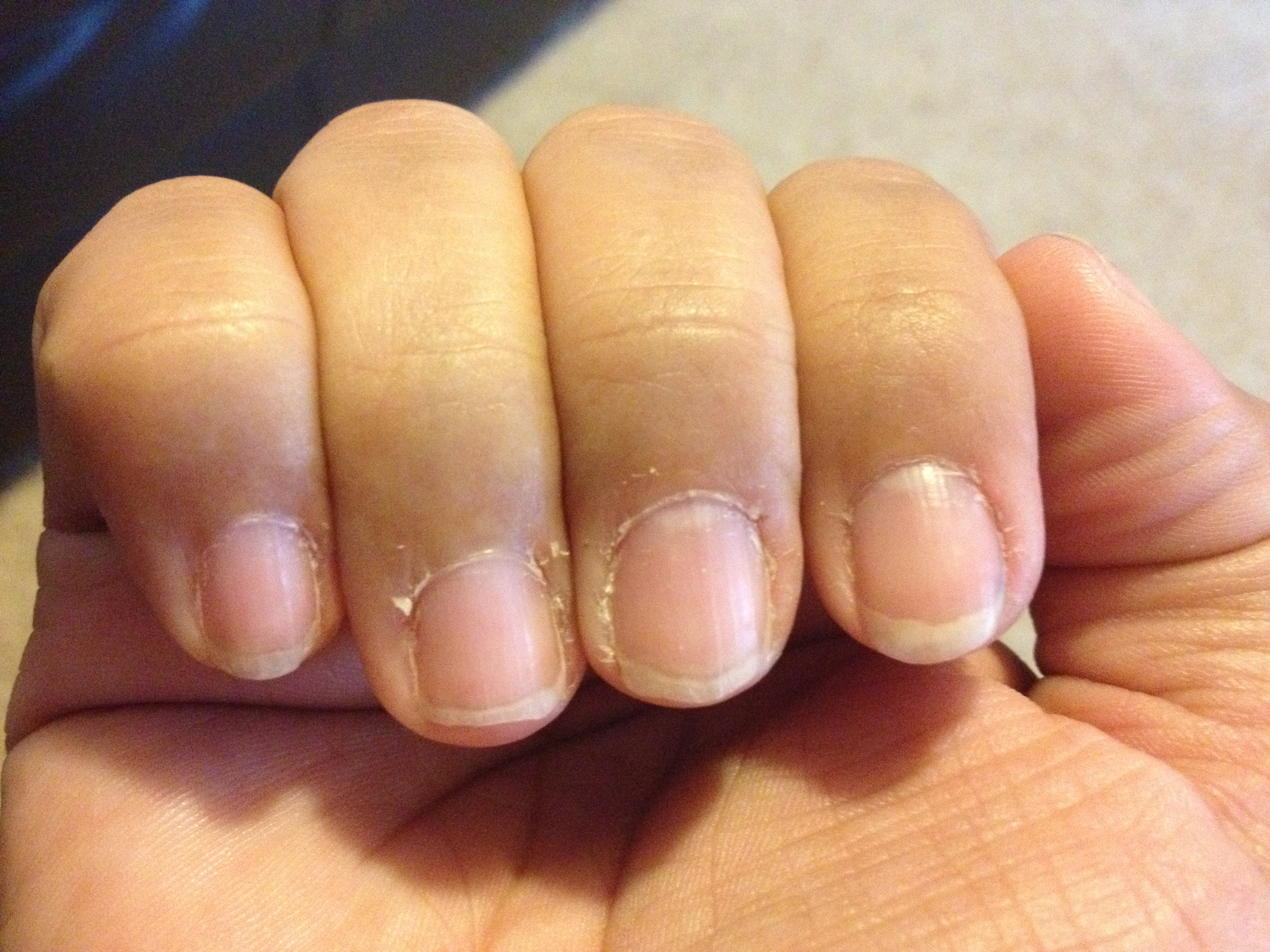 Dry fingernails with ridges - Awesome Nail